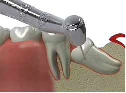http://www.dentistrysource.ca/articles/images/wisdom_teeth_2.png